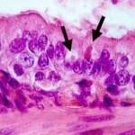 Corpi inclusi eosinofilici